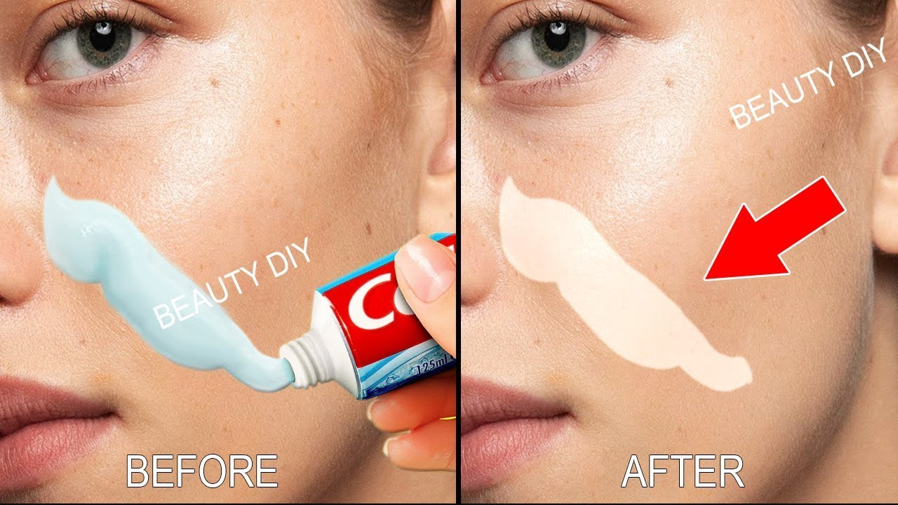 Photo of Top 5 Amazing Toothpaste Beauty Hacks । How to remove blackheads, Remove pimples & Whiten Skin Fast