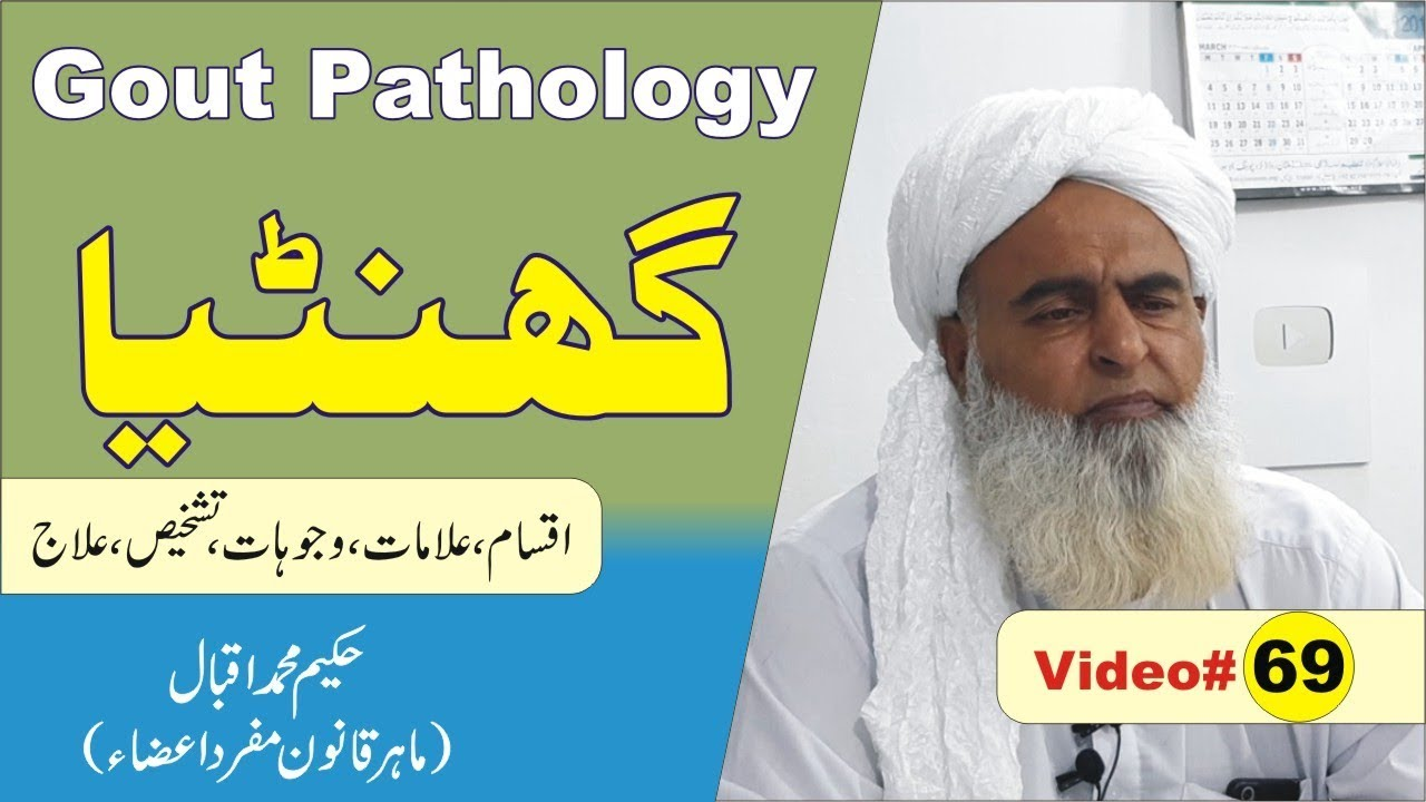 Photo of Gout Pathology ►Video 69 ► گنٹھیا کا علاج ► Rheumatoid Arthritis संधिशोथ ► Nukta Guidance