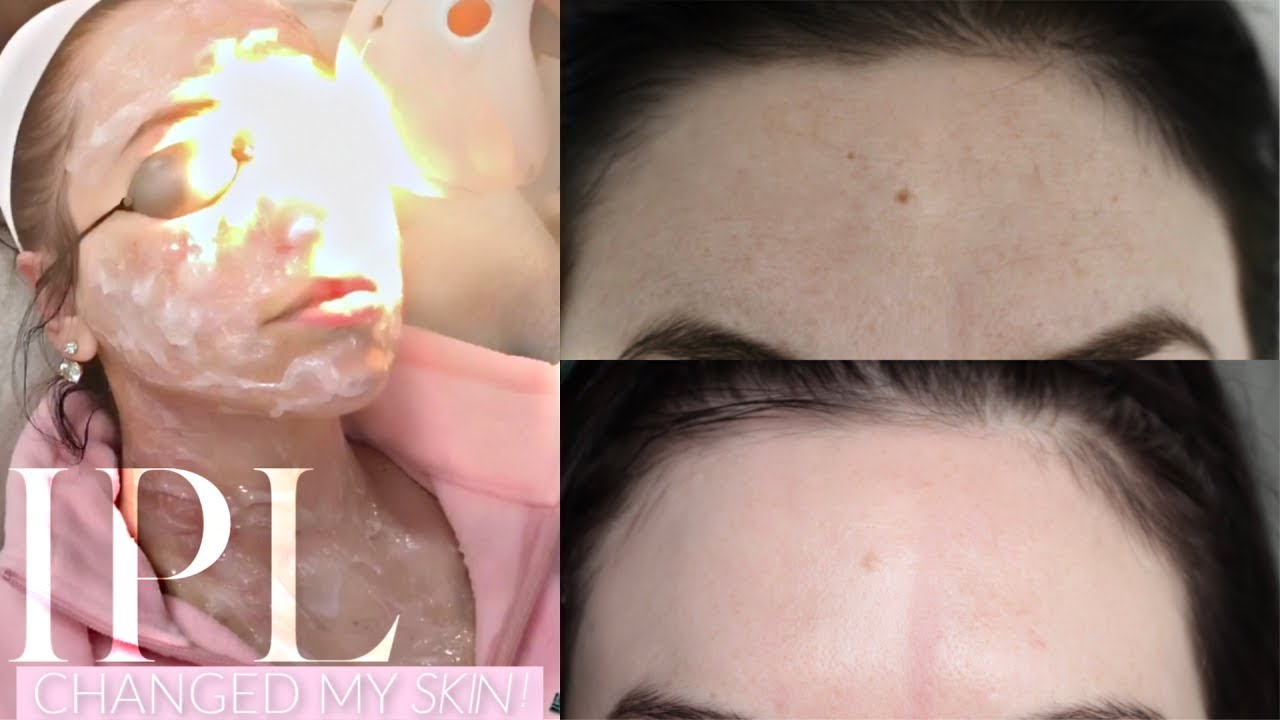 Photo of IPL The Facial that changed my skin !
