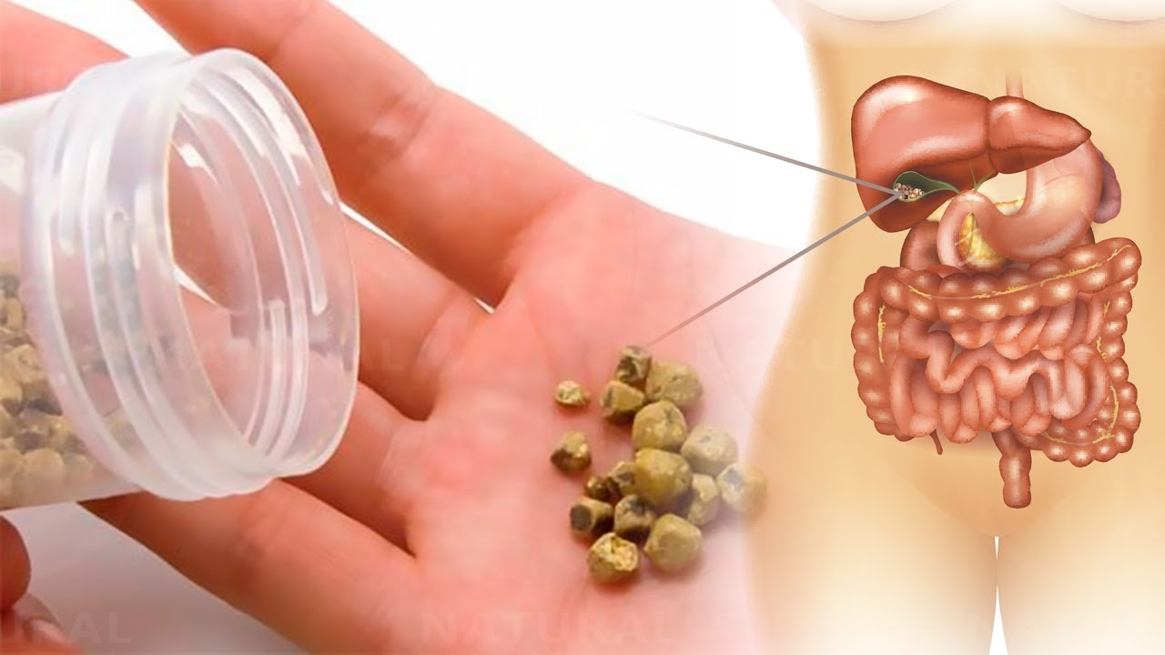 Photo of How to Get Rid of Gallstones Naturally
