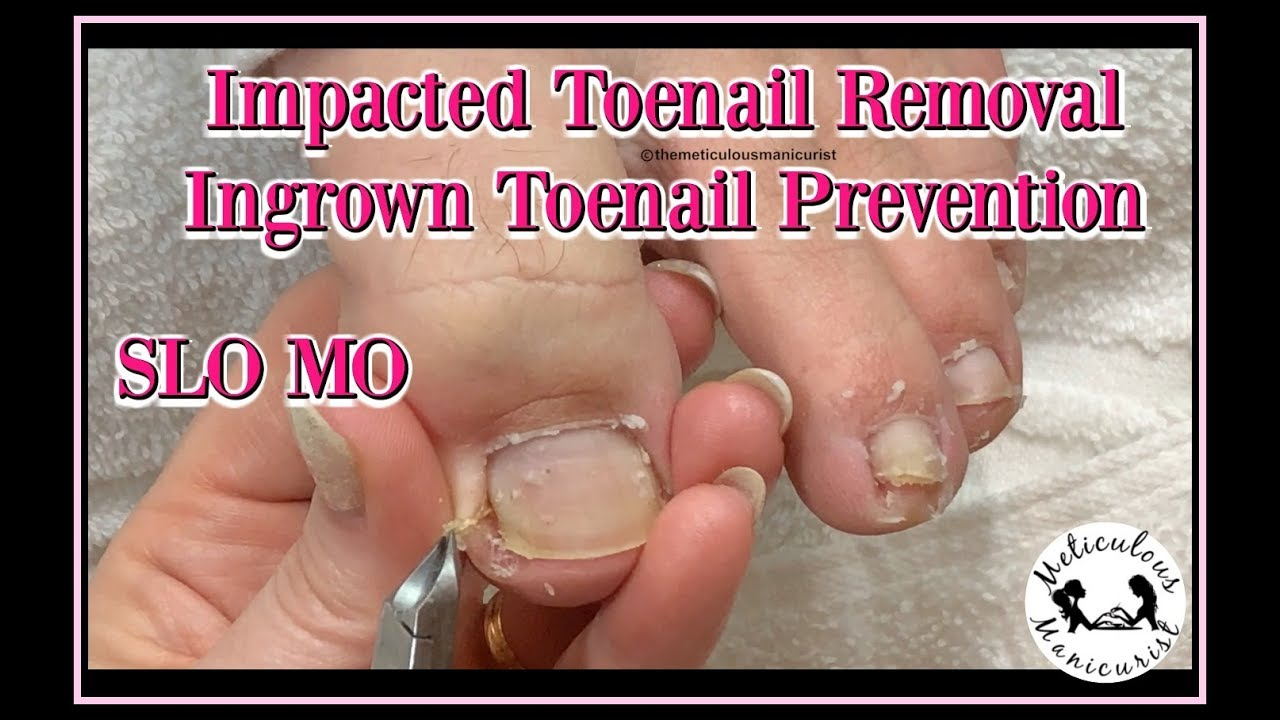 Photo of 👣How to Clean Impacted Toenails to Prevent Ingrown Toenails 👣