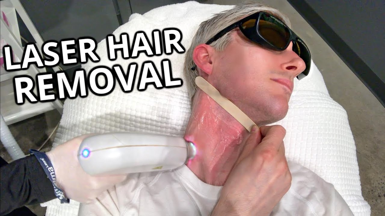 Photo of I did LASER HAIR REMOVAL & IPL on my FACE | Trevor Ritchie