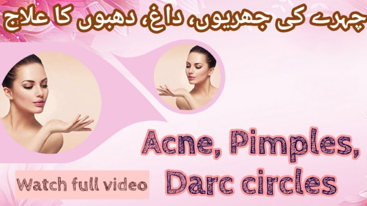 Photo of face pimples treatment at home |  چہرے کے کیل مہاسوں کا علاج