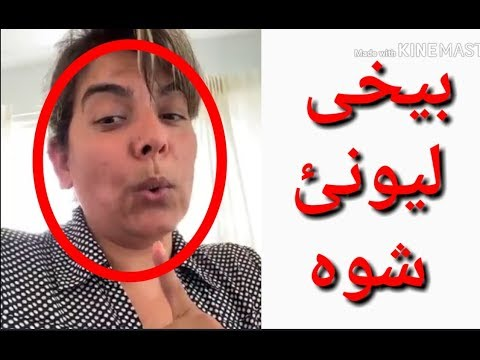Photo of ‌‌Doctora Che pa Kom qahar awokhte//ملگرو رازی چی ورلہ علاج وکو