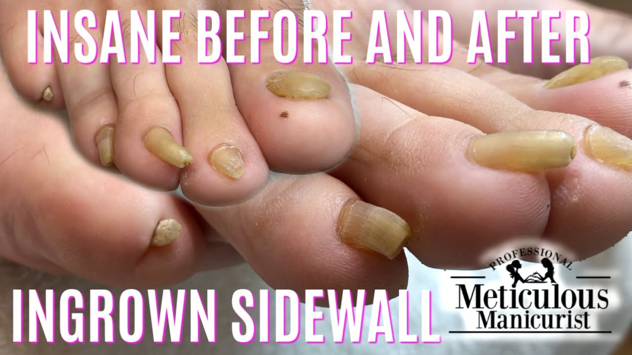Photo of 👣 Pedicure Tutorial: How to Cut Long Curled Trumpet Toenails 👣