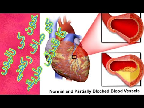 Photo of diet plan for cholesterol patient۔۔۔کولیسٹرول کا غذائی  علاج اور پرھیز