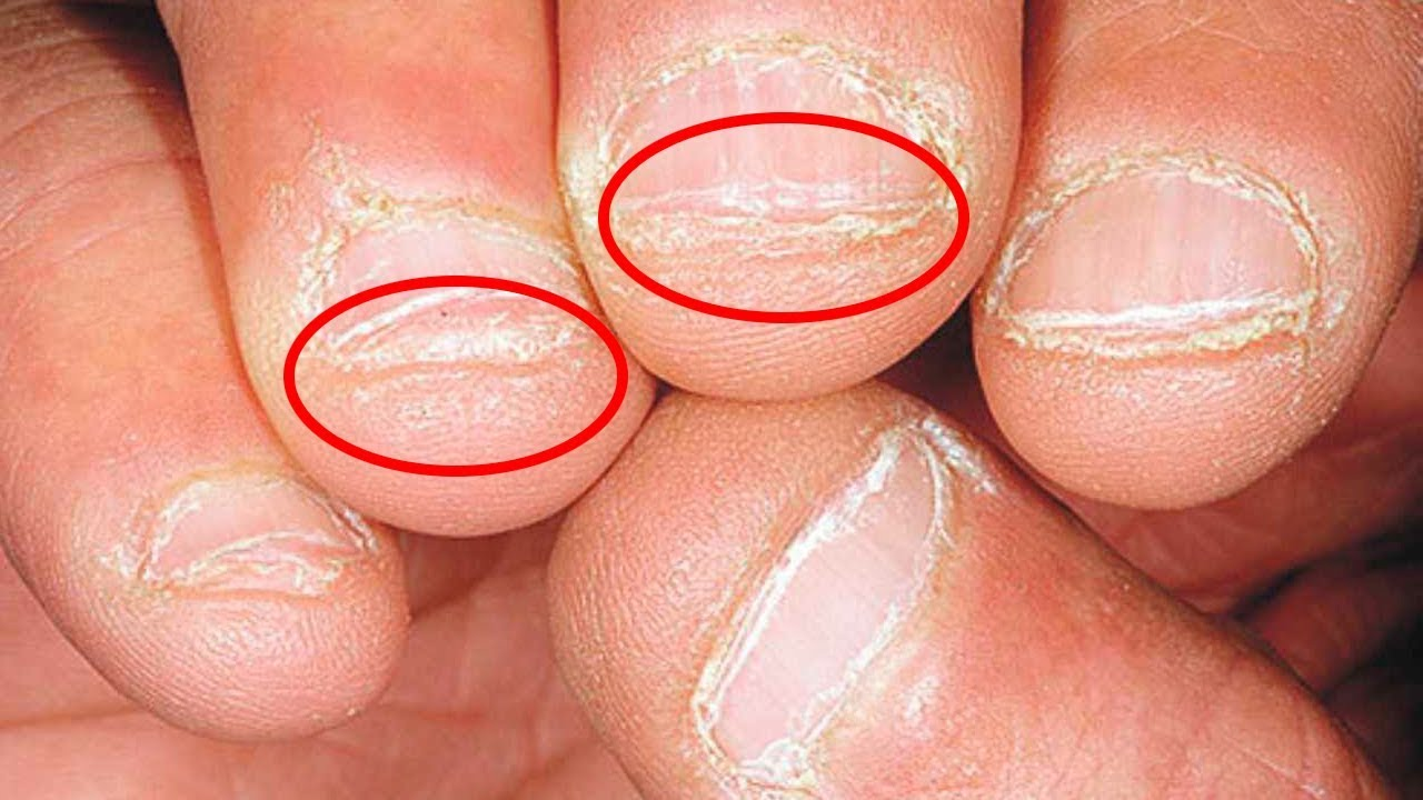 Photo of How To Stop Nail Biting And Picking, Once And For All